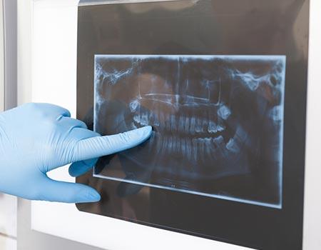 orale_chirurgie_portfolio
